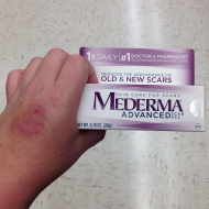 Dog Bite Update + Mederma Review
